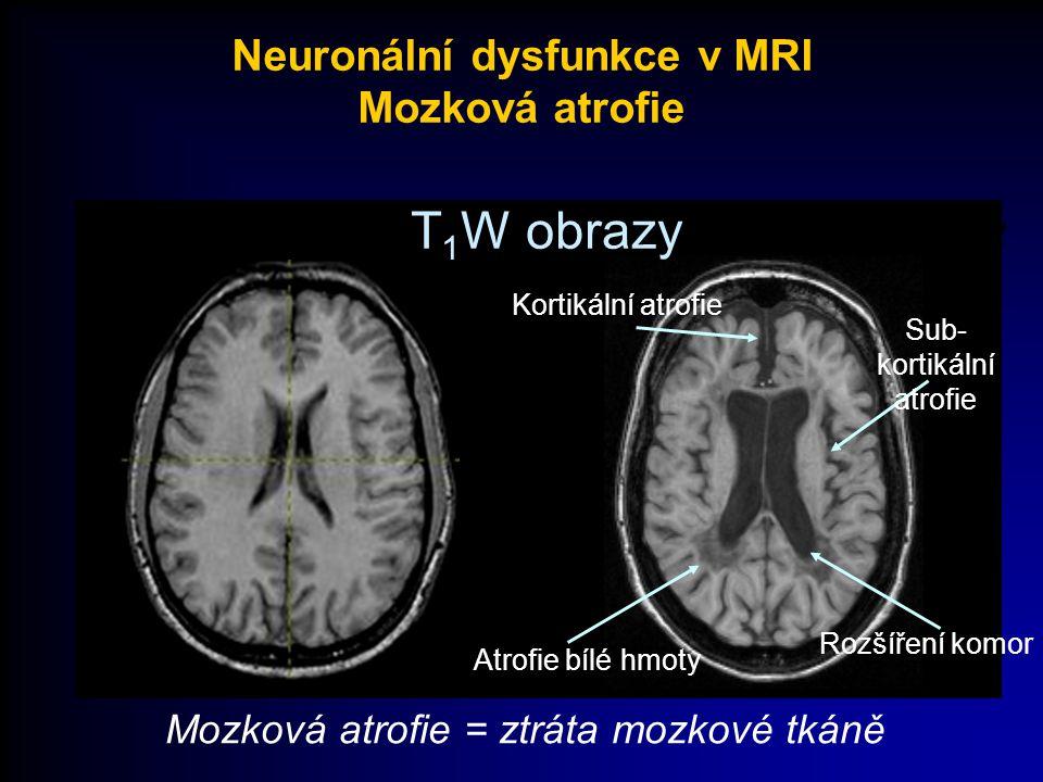 T 1 W obrazy Mozková atrofie = ztráta mozkové tkáně Normal Patient Sub- kortikální atrofie Kortikální atrofie Atrofie bílé hmoty Rozšíření komor Neuro