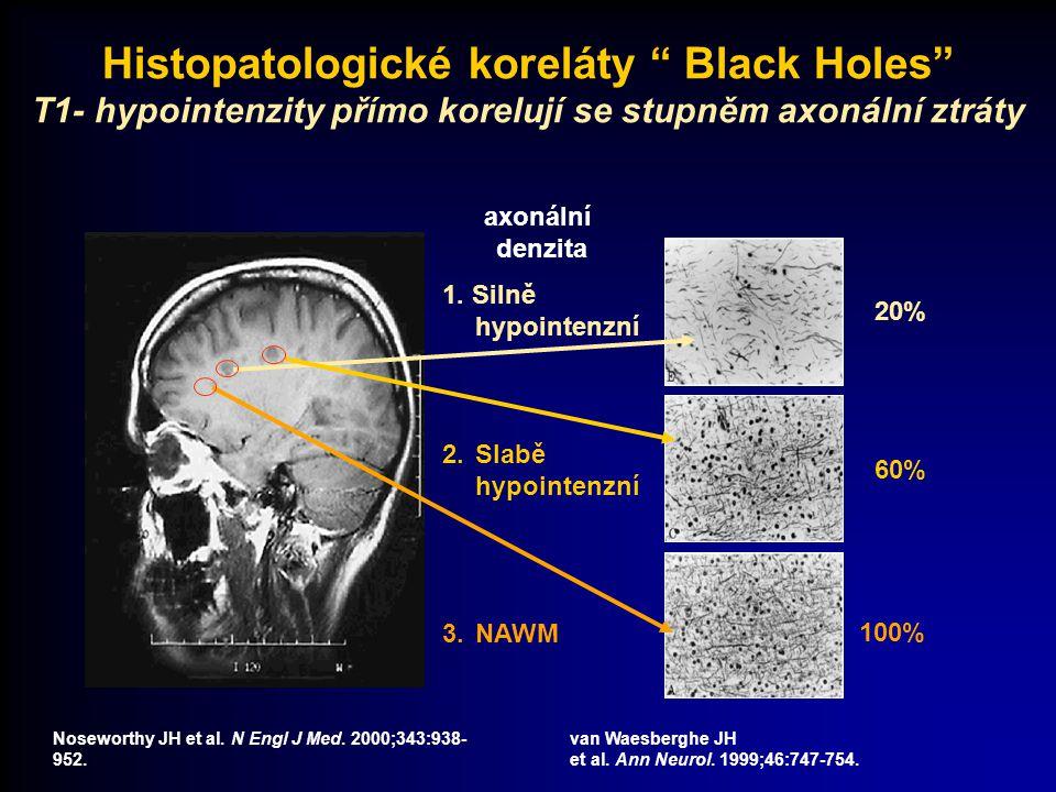 Noseworthy JH et al. N Engl J Med. 2000;343:938- 952. van Waesberghe JH et al. Ann Neurol. 1999;46:747-754. axonální denzita 3.NAWM 100% 1. Silně hypo