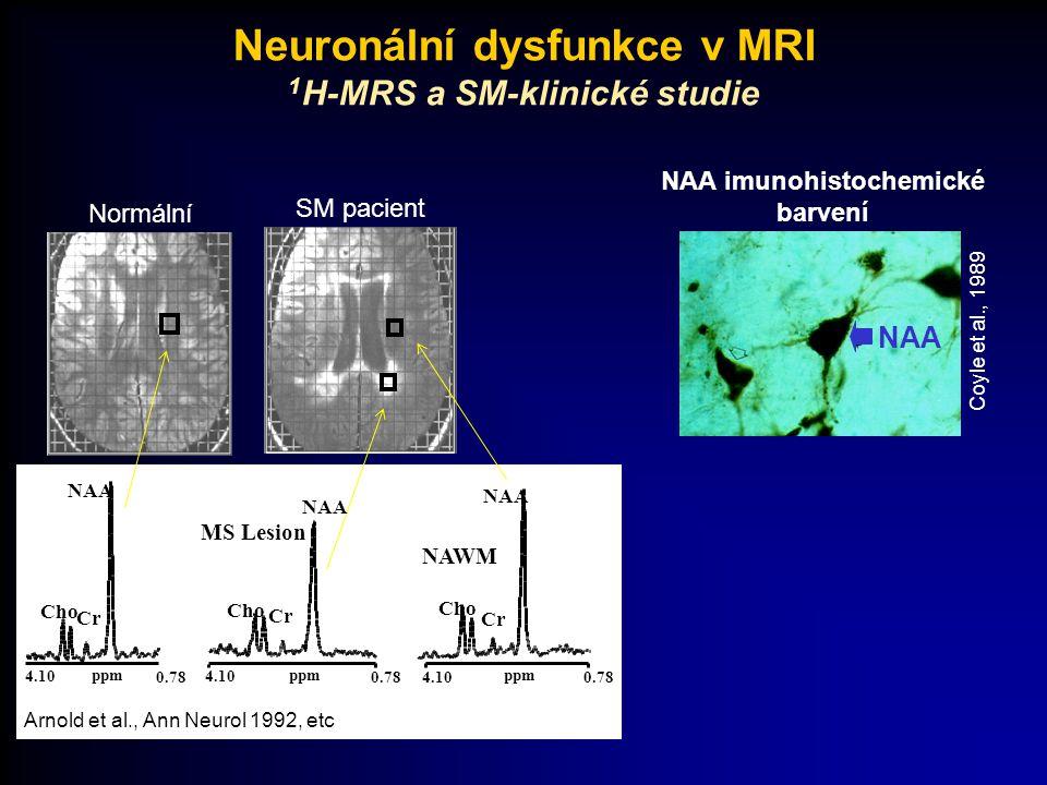 Normální SM pacient Arnold et al., Ann Neurol 1992, etc 4.10 ppm 0.78 NAA Cr Cho 4.10 ppm 0.78 NAA Cr Cho NAA Cr 4.10 ppm 0.78 Cho MS Lesion NAWM NAA