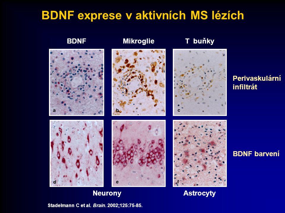Stadelmann C et al. Brain. 2002;125:75-85. BDNFMikroglieT buňky NeuronyAstrocyty Perivaskulární infiltrát BDNF barvení BDNF exprese v aktivních MS léz