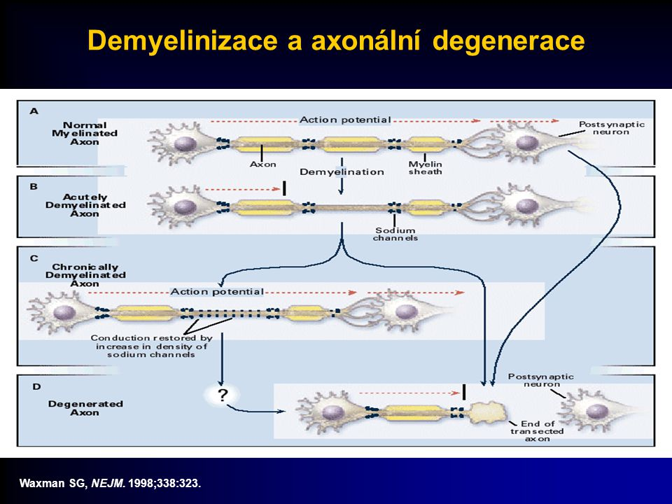 Patologie sclerosis multiplex Zánět Axonální ztráta Glióza Demyelinizace NormálníMS