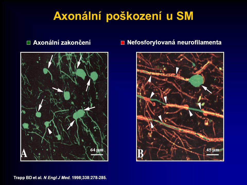 Axonální zakončení Trapp BD et al. N Engl J Med. 1998;338:278-285. Nefosforylovaná neurofilamenta Axonální poškození u SM 64  m45  m