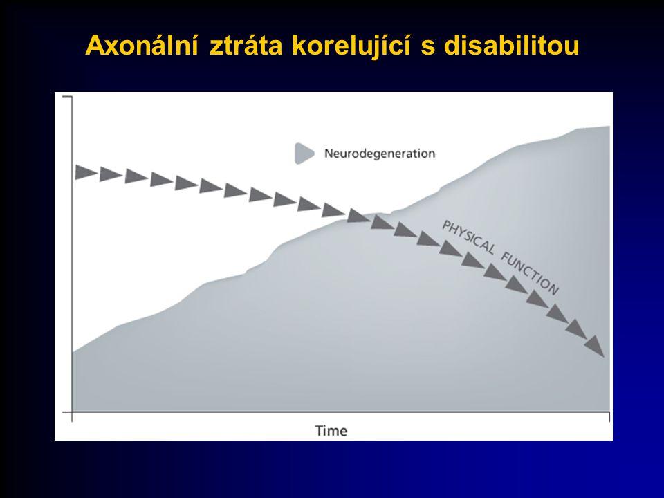 Souhrn MS má 2 aspekty  Fokální  Akutní  Rekurentní  Klinický relaps  Méně vyjádřená progrese onemocnění  Difuzní  Časný  Chronický  Progresivní  Vyjadřuje progresi onemocnění ZánětNeurodegenerace