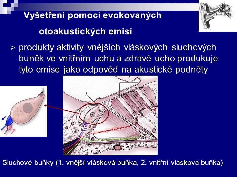 Vyšetření pomocí evokovaných otoakustických emisí  produkty aktivity vnějších vláskových sluchových buněk ve vnitřním uchu a zdravé ucho produkuje ty
