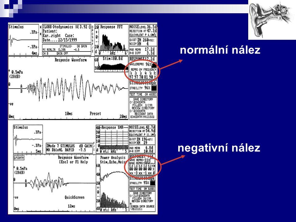 Cíl práce Cílem práce je po 6 letech zhodnotit výsledky screeningu sluchu pomocí prahové tónové audiometrie.
