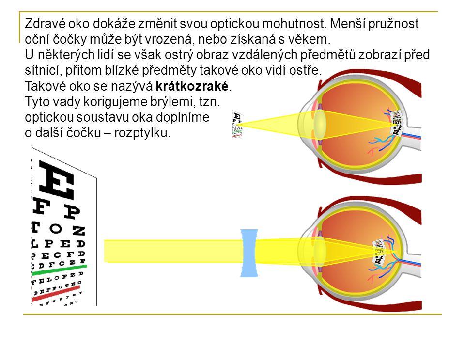 Další případ možné vady oka je, že oko není schopno zaostřit na blízké předměty, jejich obraz je ostrý až za sítnicí.