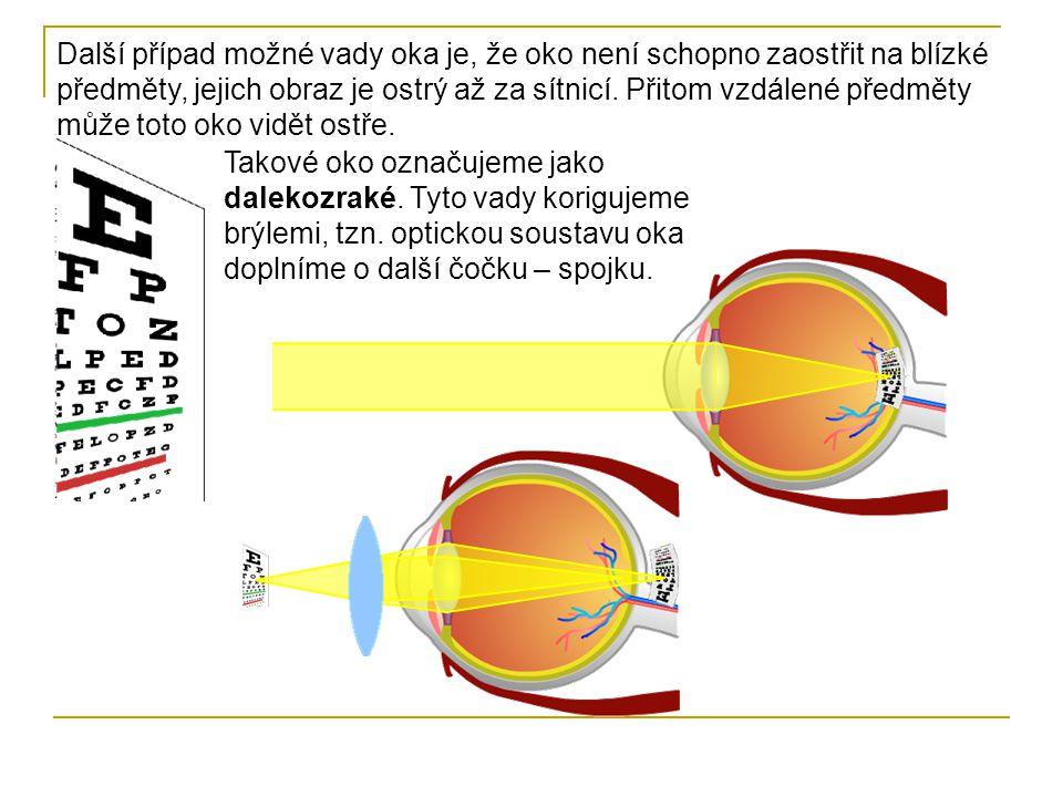 Dalekozraké oko – vidí dobře vzdálené předměty, ale není schopno zaostřit při pohledu na blízké předměty, obraz vzniká za sítnicí.