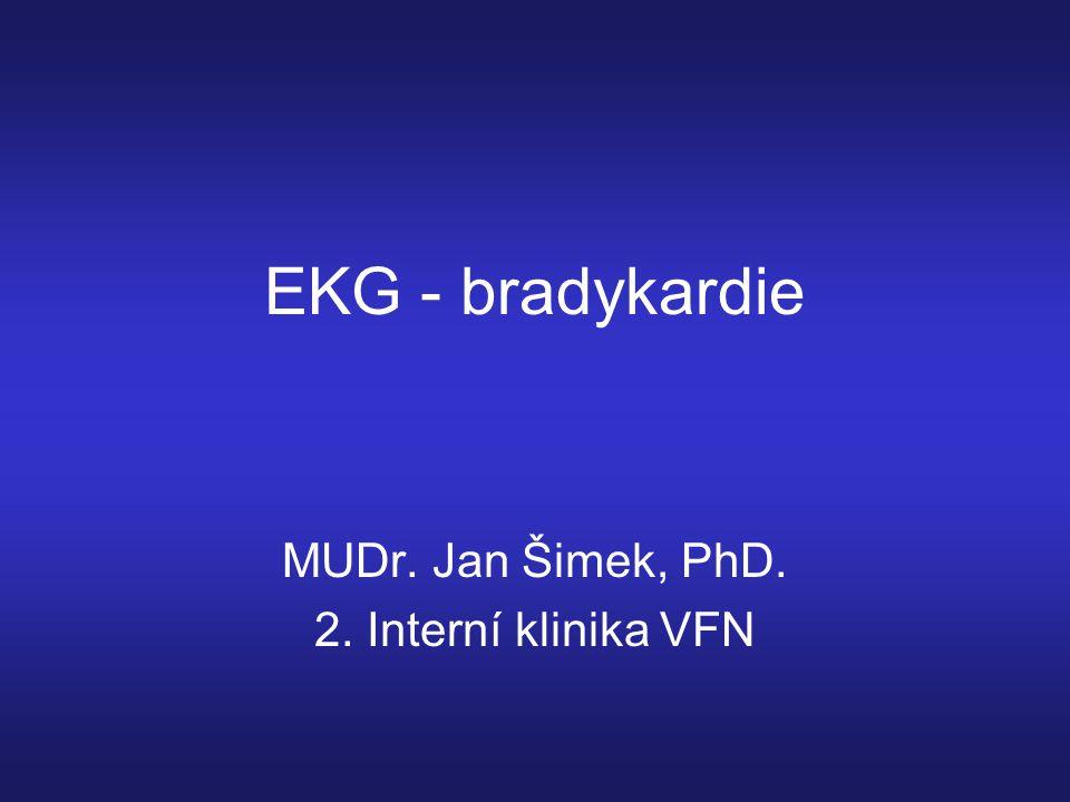 EKG - bradykardie MUDr. Jan Šimek, PhD. 2. Interní klinika VFN