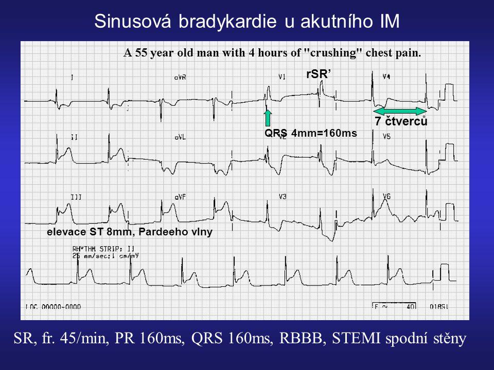 Sinusová bradykardie u akutního IM SR, fr.