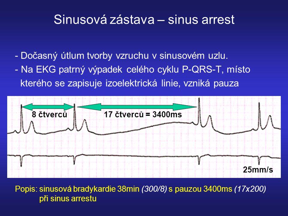 Sinusová zástava – sinus arrest - Dočasný útlum tvorby vzruchu v sinusovém uzlu.