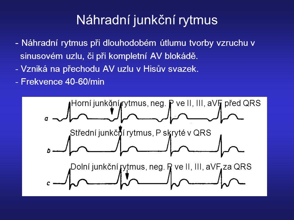 Náhradní junkční rytmus - Náhradní rytmus při dlouhodobém útlumu tvorby vzruchu v sinusovém uzlu, či při kompletní AV blokádě.