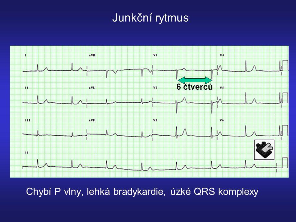 Junkční rytmus 6 čtverců Chybí P vlny, lehká bradykardie, úzké QRS komplexy