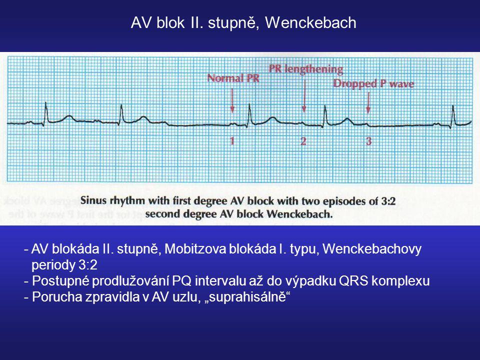 AV blok II.stupně, Wenckebach - AV blokáda II. stupně, Mobitzova blokáda I.