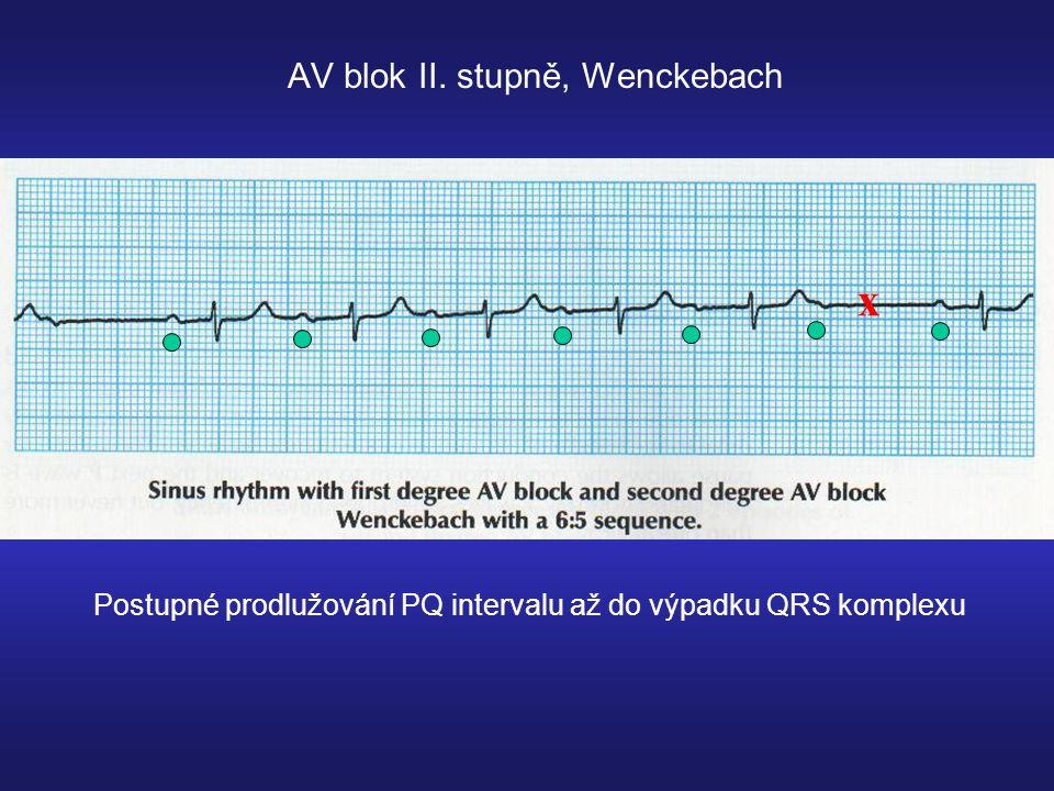 AV blok II. stupně, Wenckebach x Postupné prodlužování PQ intervalu až do výpadku QRS komplexu