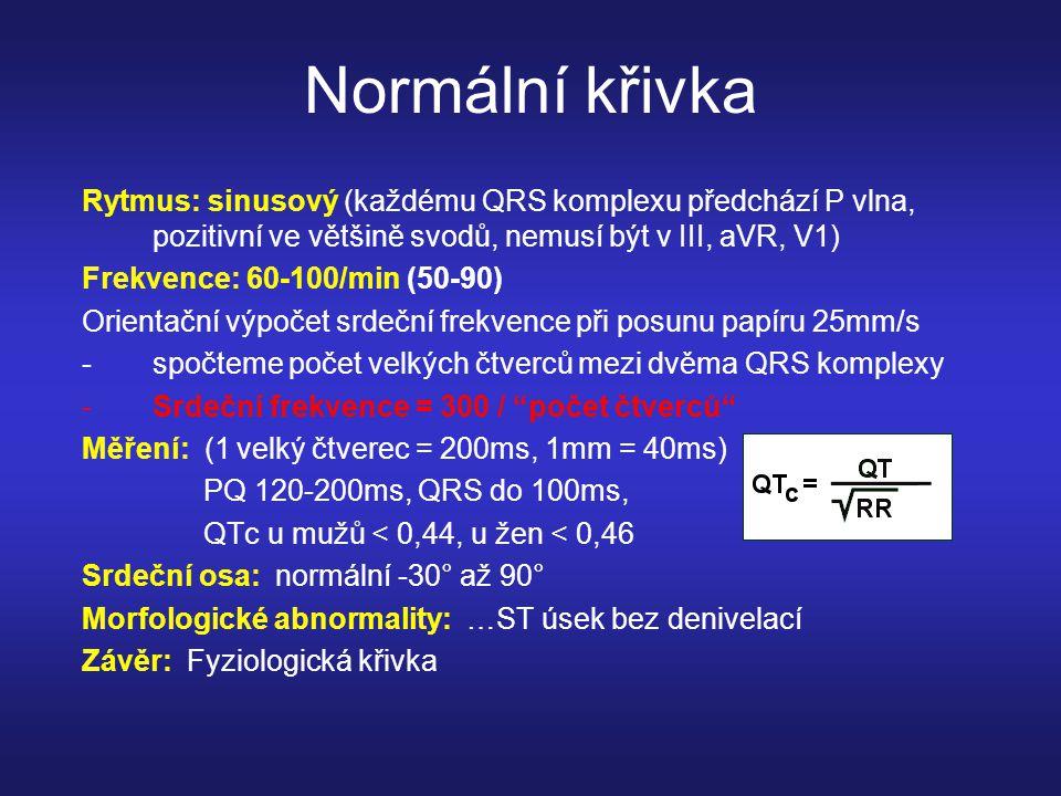 Sinusový rytmus, fr.75min, PR 280ms, AV blok I.