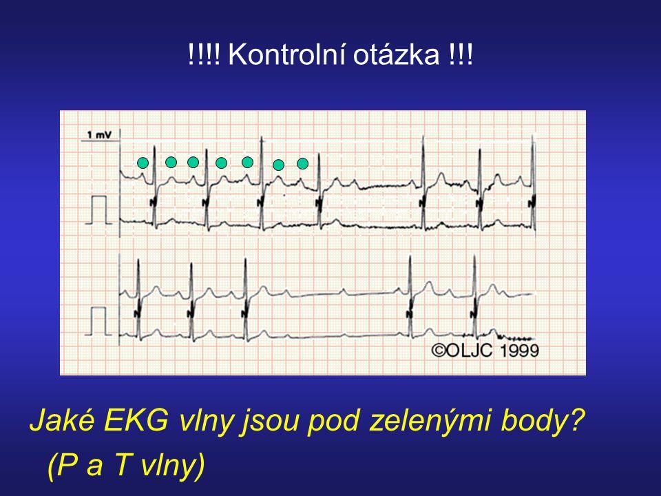 !!!! Kontrolní otázka !!! Jaké EKG vlny jsou pod zelenými body? (P a T vlny)