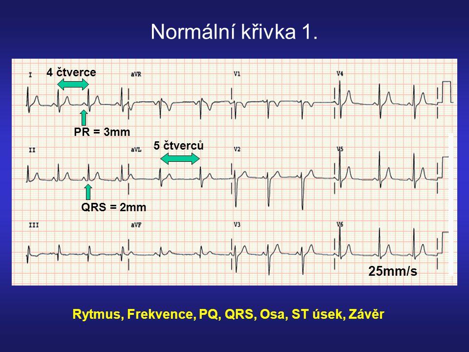 Normální osa (-30° až +90°): Dominantní kmit QRS: +I, +aVF (LD kvadrant) nebo +I, - aVF, +II (část LH kvadrantu) I III II aVF Pravá rukaLevá ruka Levá noha -30° +I, -aVF +I, +aVF -I, -aVF -I, +aVF +90° aVL LH LD Určování srdeční osy