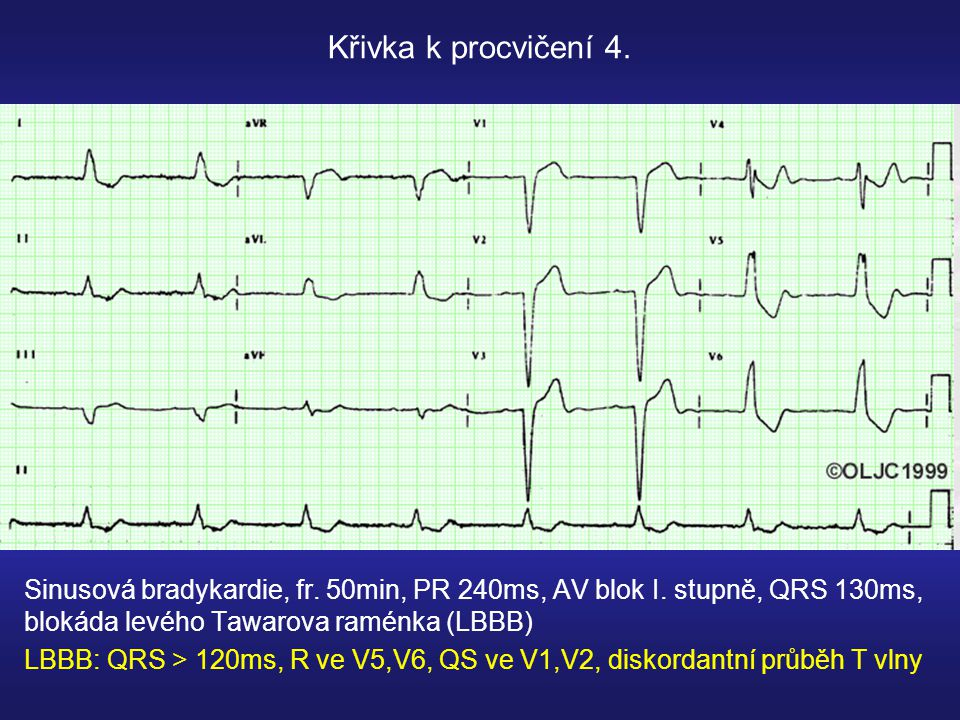 Sinusová bradykardie, fr.50min, PR 240ms, AV blok I.