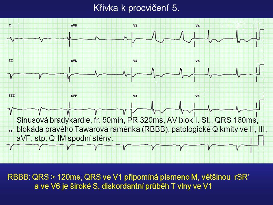 Sinusová bradykardie, fr.50min, PR 320ms, AV blok I.