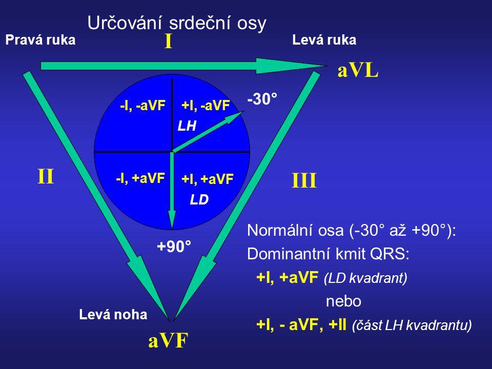 Idioventrikulární rytmus Chybí P vlny, těžká bradykardie, široké QRS komplexy 9 čtverců QRS = 5mm
