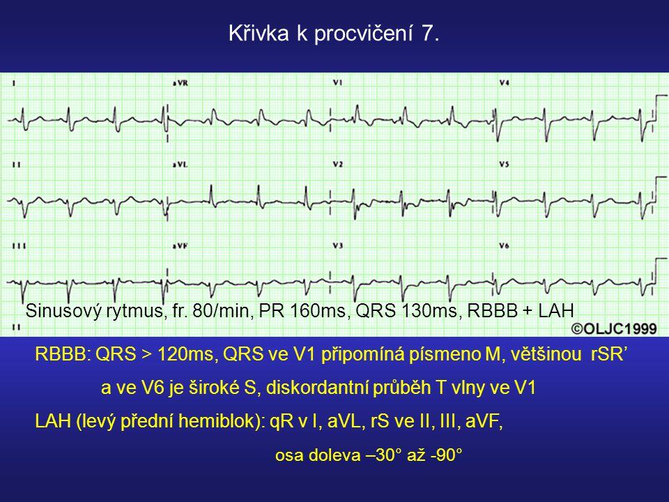 Sinusový rytmus, fr.