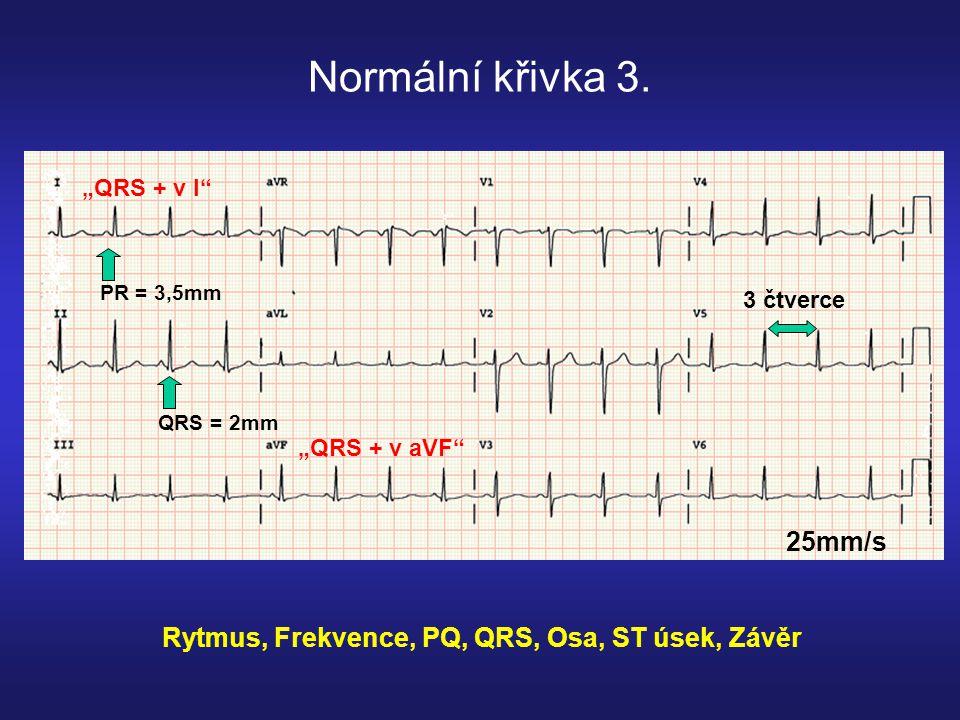 Normální křivka 3.