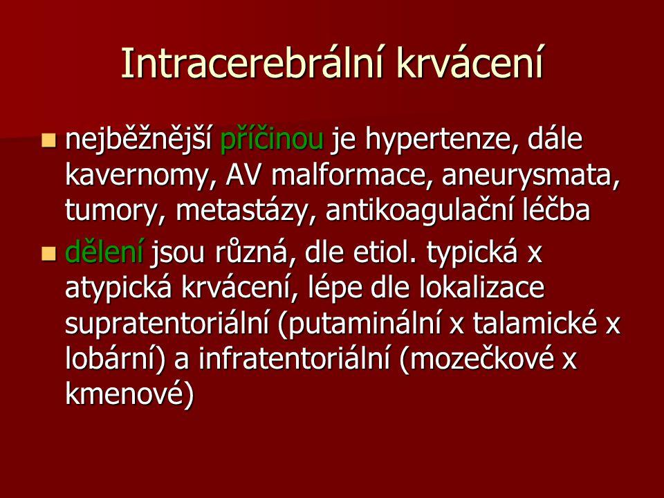 Intracerebrální krvácení nejběžnější příčinou je hypertenze, dále kavernomy, AV malformace, aneurysmata, tumory, metastázy, antikoagulační léčba nejběžnější příčinou je hypertenze, dále kavernomy, AV malformace, aneurysmata, tumory, metastázy, antikoagulační léčba dělení jsou různá, dle etiol.