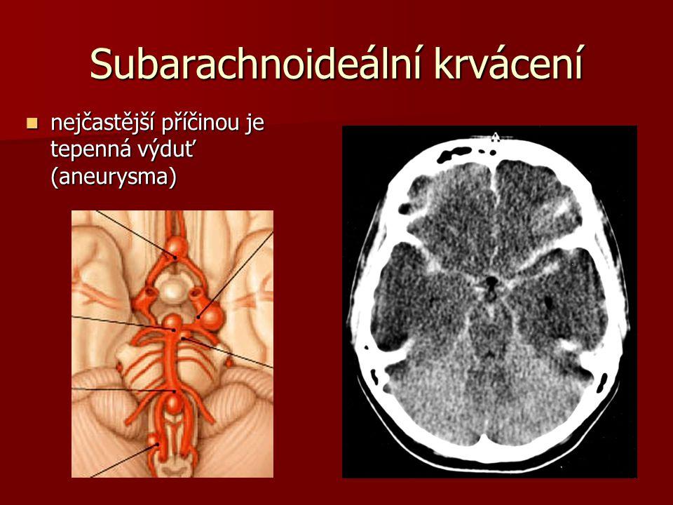 Subarachnoideální krvácení nejčastější příčinou je tepenná výduť (aneurysma) nejčastější příčinou je tepenná výduť (aneurysma)