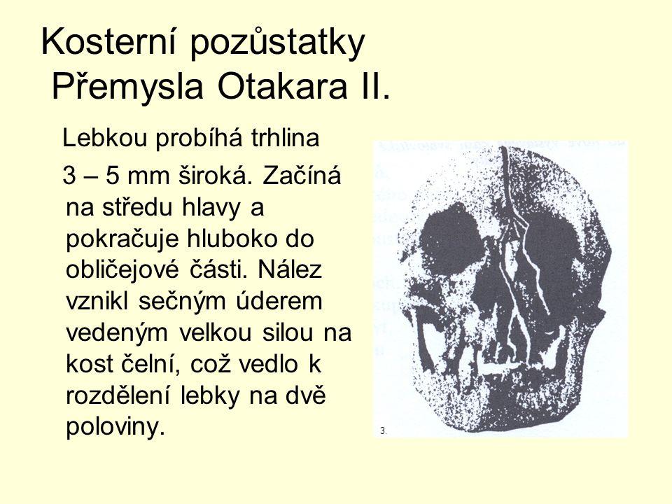 Kosterní pozůstatky Přemysla Otakara II. Lebkou probíhá trhlina 3 – 5 mm široká.