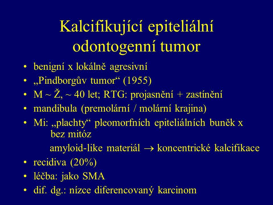 """Kalcifikující epiteliální odontogenní tumor benigní x lokálně agresivní """"Pindborgův tumor (1955) M ~ Ž, ~ 40 let; RTG: projasnění + zastínění mandibula (premolární / molární krajina) Mi: """"plachty pleomorfních epiteliálních buněk x bez mitóz amyloid-like materiál  koncentrické kalcifikace recidiva (20%) léčba: jako SMA dif."""
