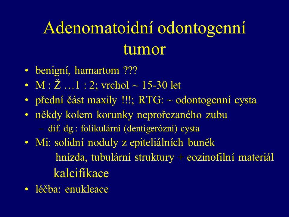 Adenomatoidní odontogenní tumor benigní, hamartom ??? M : Ž …1 : 2; vrchol ~ 15-30 let přední část maxily !!!; RTG: ~ odontogenní cysta někdy kolem ko