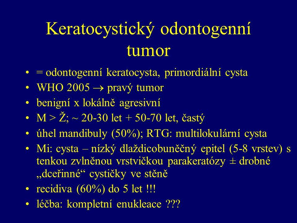 """Keratocystický odontogenní tumor = odontogenní keratocysta, primordiální cysta WHO 2005  pravý tumor benigní x lokálně agresivní M > Ž; ~ 20-30 let + 50-70 let, častý úhel mandibuly (50%); RTG: multilokulární cysta Mi: cysta – nízký dlaždicobuněčný epitel (5-8 vrstev) s tenkou zvlněnou vrstvičkou parakeratózy ± drobné """"dceřinné cystičky ve stěně recidiva (60%) do 5 let !!."""