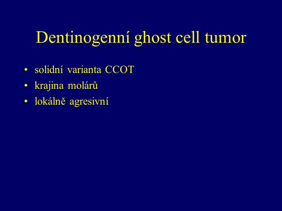 Dentinogenní ghost cell tumor solidní varianta CCOT krajina molárů lokálně agresivní