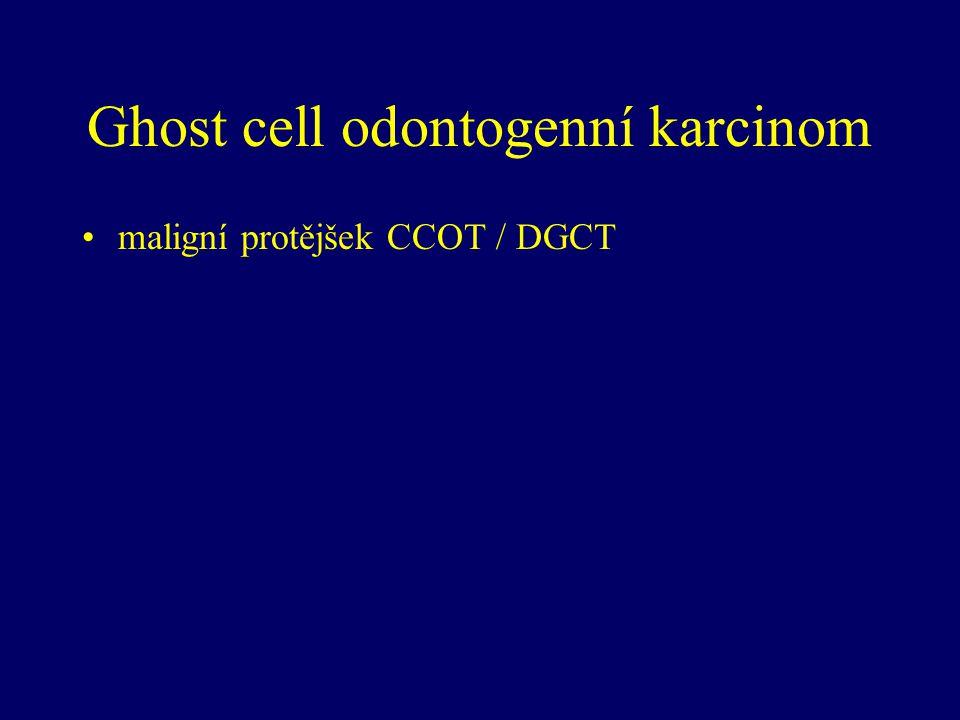 Ghost cell odontogenní karcinom maligní protějšek CCOT / DGCT