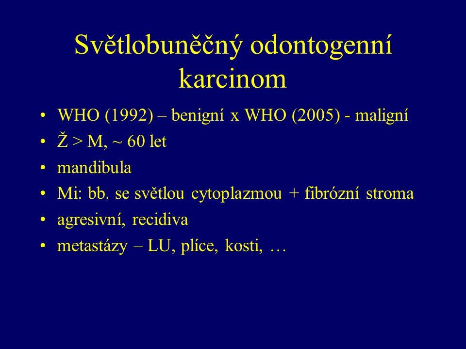 Světlobuněčný odontogenní karcinom WHO (1992) – benigní x WHO (2005) - maligní Ž > M, ~ 60 let mandibula Mi: bb. se světlou cytoplazmou + fibrózní str