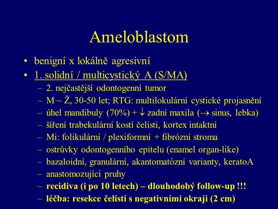 """Kalcifikující cystický odontogenní tumor = Gorlinova cysta WHO 2005  pravý tumor M ~ Ž, ~ 5 – 92 let přední mandibula ~ přední maxila, gingiva Mi: cysta vystlaná ameloblastickým epitelem """"ghost cells  kalcifikace dentin v epitelu či ve stěně recidiva někdy asociace s ameloblastomem léčba: enukleace"""