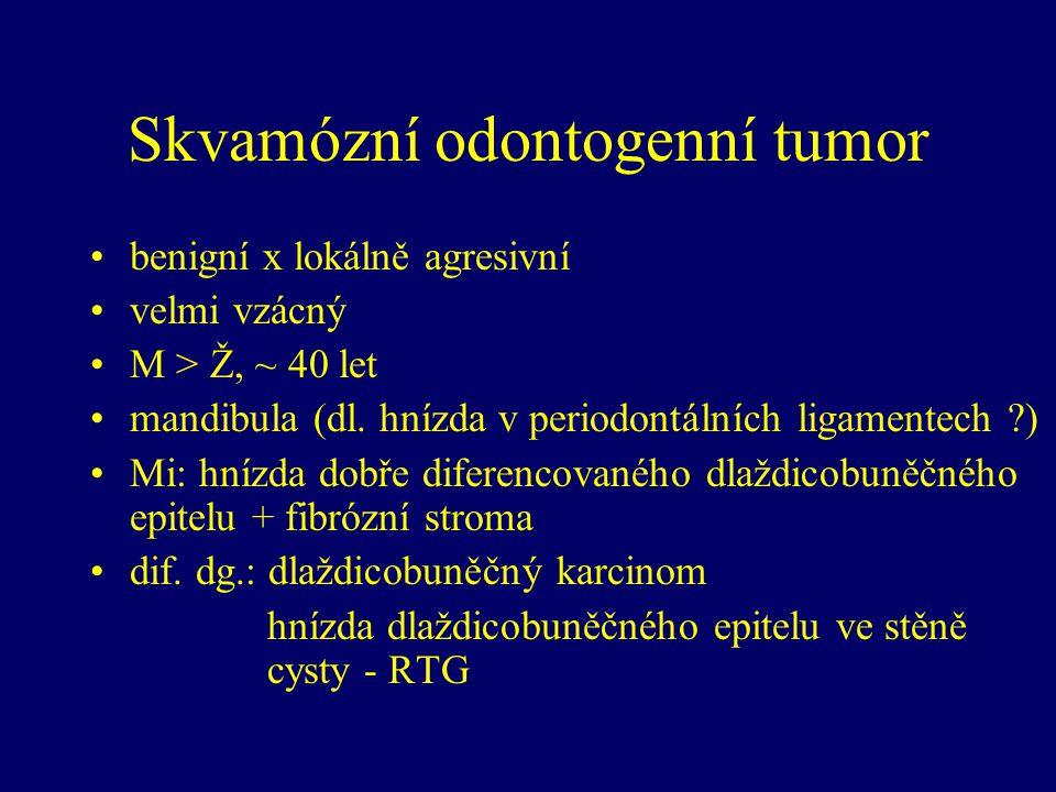 Skvamózní odontogenní tumor benigní x lokálně agresivní velmi vzácný M > Ž, ~ 40 let mandibula (dl. hnízda v periodontálních ligamentech ?) Mi: hnízda