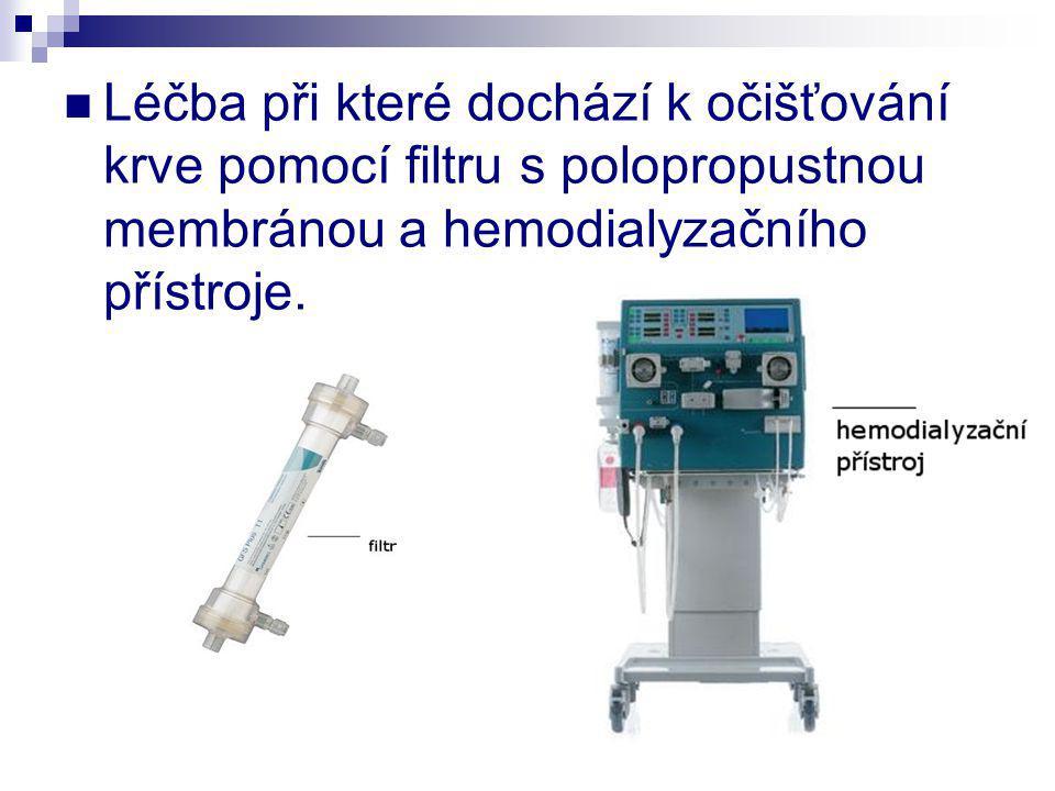 Léčba při které dochází k očišťování krve pomocí filtru s polopropustnou membránou a hemodialyzačního přístroje.