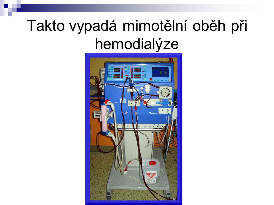 Takto vypadá mimotělní oběh při hemodialýze