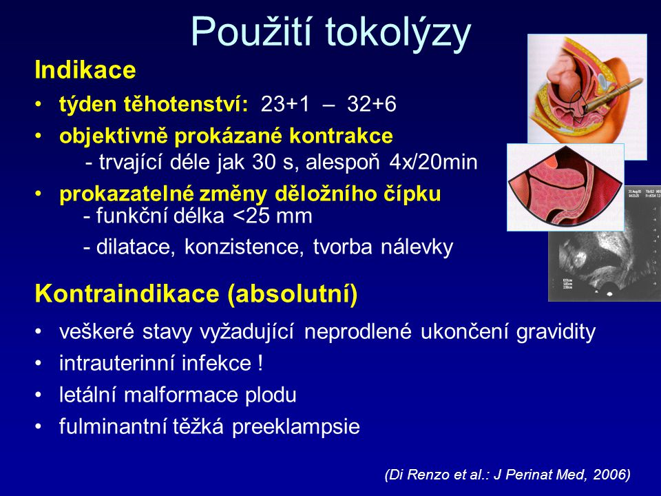 Použití tokolýzy Indikace týden těhotenství: 23+1 – 32+6 objektivně prokázané kontrakce - trvající déle jak 30 s, alespoň 4x/20min prokazatelné změny