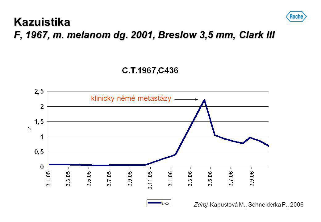 Kazuistika F, 1967, m. melanom dg. 2001, Breslow 3,5 mm, Clark III Zdroj: Kapustová M., Schneiderka P., 2006 klinicky němé metastázy