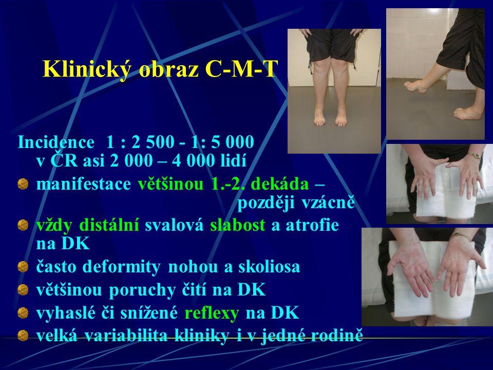 Klinický obraz C-M-T Incidence 1 : 2 500 - 1: 5 000 v ČR asi 2 000 – 4 000 lidí manifestace většinou 1.-2. dekáda – později vzácně vždy distální svalo