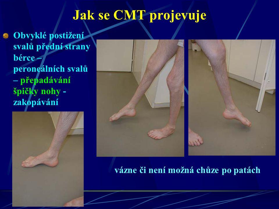 Jak se CMT projevuje Obvyklé postižení svalů přední strany bérce – peroneálních svalů – přepadávání špičky nohy - zakopávání vázne či není možná chůze
