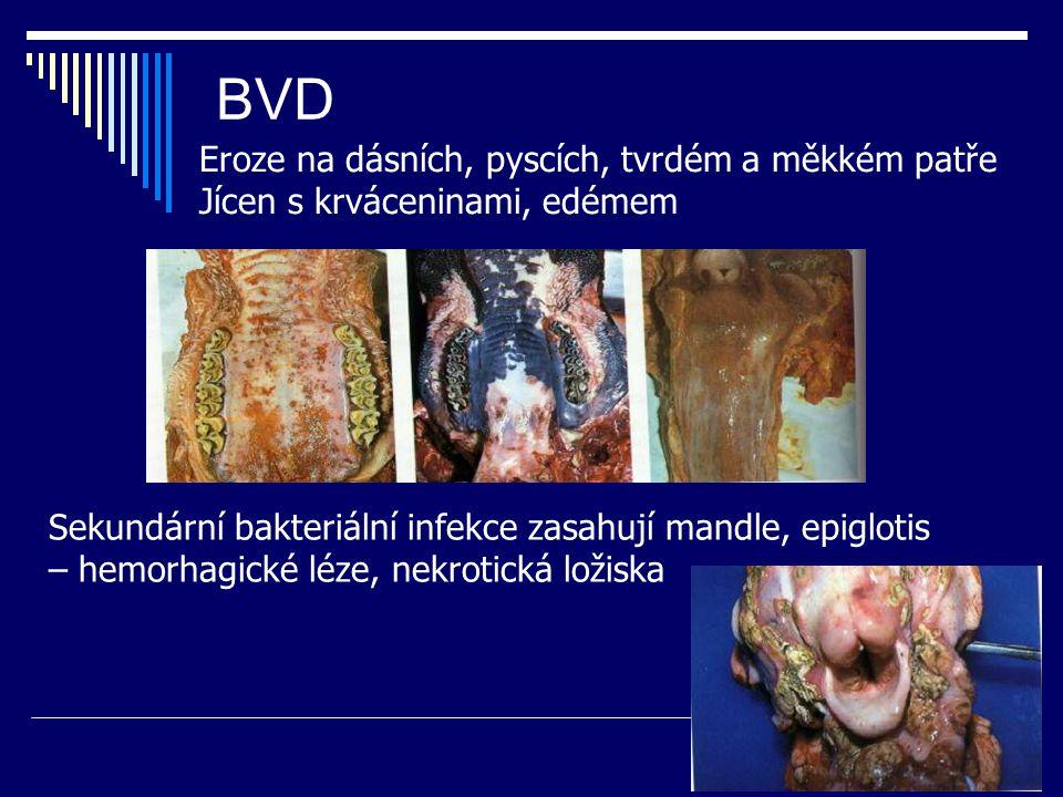 BVD Eroze na dásních, pyscích, tvrdém a měkkém patře Jícen s krváceninami, edémem Sekundární bakteriální infekce zasahují mandle, epiglotis – hemorhag