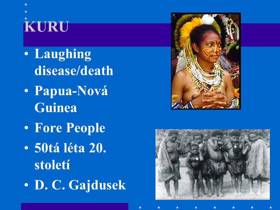 KURU Laughing disease/death Papua-Nová Guinea Fore People 50tá léta 20. století D. C. Gajdusek