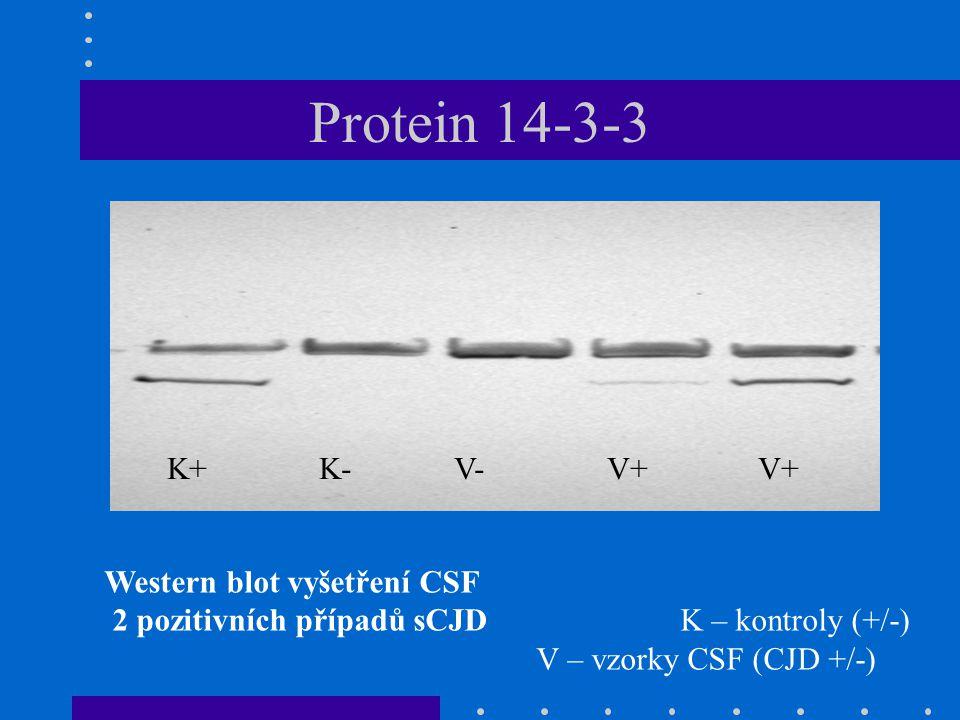 Western blot vyšetření CSF 2 pozitivních případů sCJDK – kontroly (+/-) V – vzorky CSF (CJD +/-) K+K- V-V+ V+ Protein 14-3-3