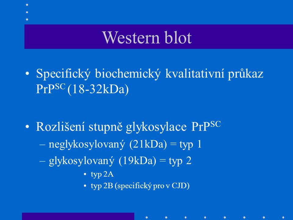 Western blot Specifický biochemický kvalitativní průkaz PrP SC (18-32kDa) Rozlišení stupně glykosylace PrP SC –neglykosylovaný (21kDa) = typ 1 –glykosylovaný (19kDa) = typ 2 typ 2A typ 2B (specifický pro v CJD)