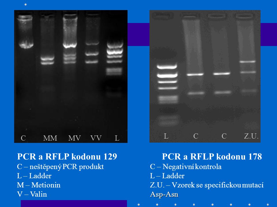 PCR a RFLP kodonu 129 C – neštěpený PCR produkt L – Ladder M – Metionin V – Valin C MM MV VV L PCR a RFLP kodonu 178 C – Negativní kontrola L – Ladder