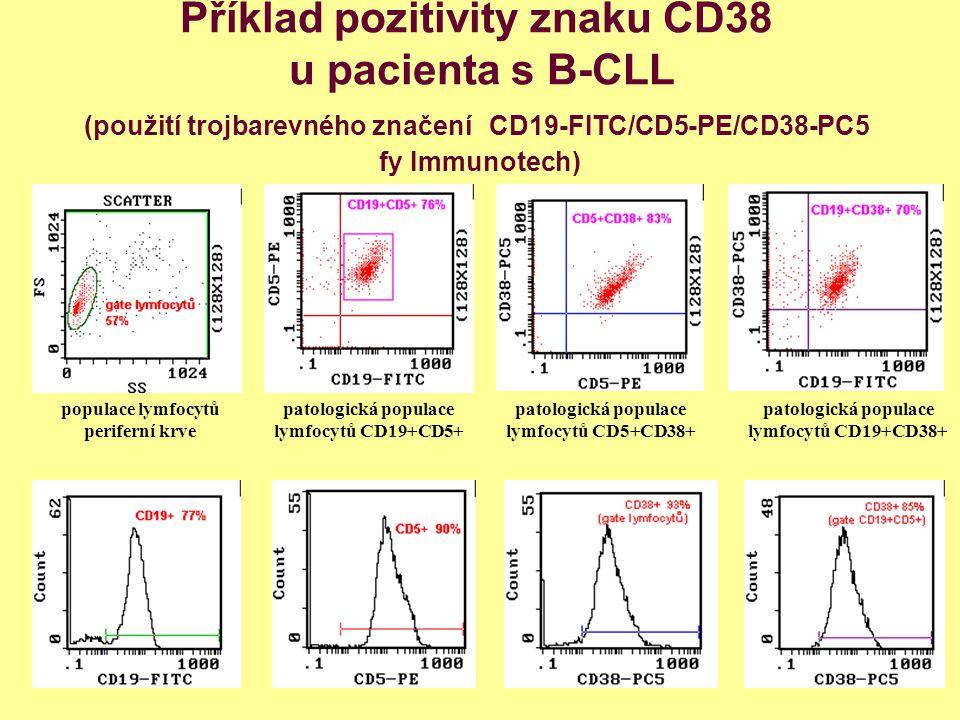 Příklad pozitivity znaku CD38 u pacienta s B-CLL (použití trojbarevného značení CD19-FITC/CD5-PE/CD38-PC5 fy Immunotech) patologická populace lymfocyt