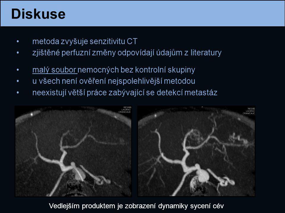 Diskuse metoda zvyšuje senzitivitu CT zjištěné perfuzní změny odpovídají údajům z literatury malý soubor nemocných bez kontrolní skupiny u všech není